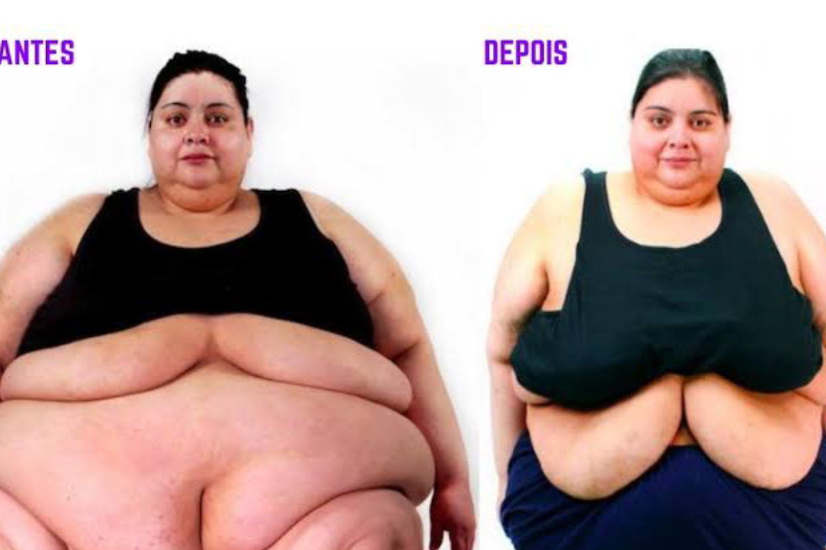 Um antes e depois da Karina. À esquerda ela está com quase 300kg e à direita já próxima dos seus 180kg.